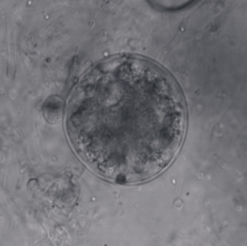Chytrid fungus, a small but (very) deadly killer. Image credit: MidgelyDJ